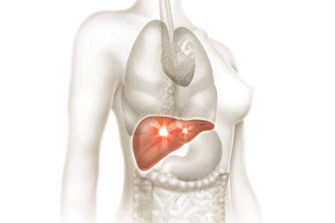 Colangite biliar primária, a doença do fígado que causa coceira e fadiga 37