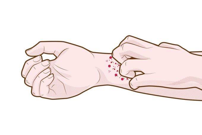 O que é dermatite atópica? Muitos não sabem os sintomas, tratamentos… 34