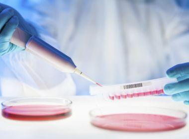 Cientistas identificam novo parasita que já infectou mais de cem pessoas no Nordeste 1