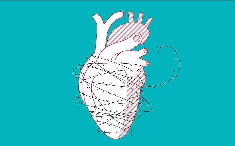É preciso perdoar: ciência confirma ligação da mágoa com infarto 39