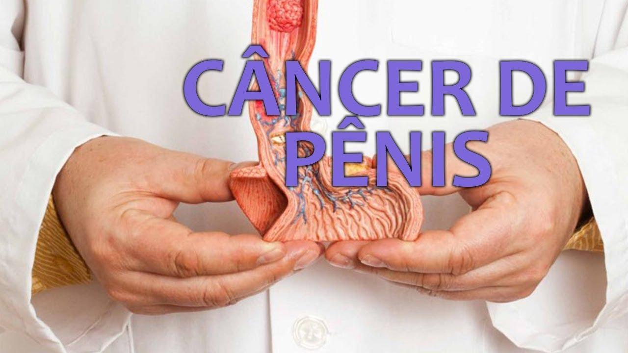 Câncer de pênis atingiu mais de 10 mil brasileiros nos últimos 5 anos 18