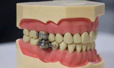 Especialistas criticam método de emagrecer que trava a boca 24